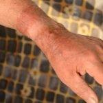 Verbrannt beim Grillen – was tun?